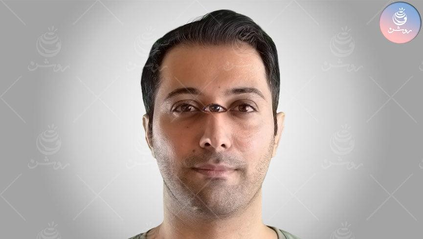 آموزش نسبت های چهره
