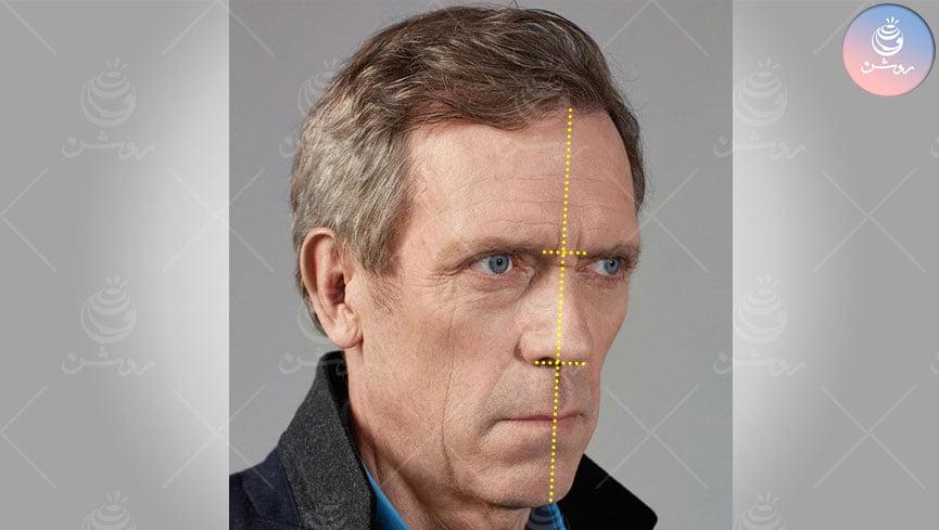 آموزش تناسبات چهره